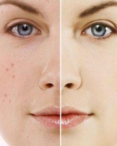 huidprobleem-240x300