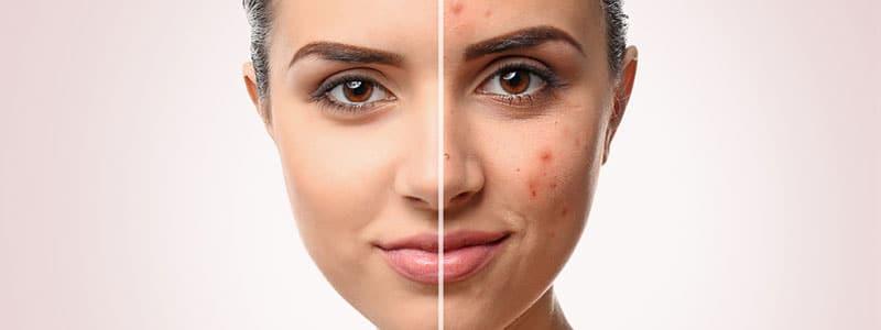 huidproblemen-foto-header